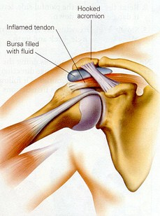 Los Angeles, West Hollywood, Beverly Hills Chiropractor Dr. Nick Campos Shoulder Impingement