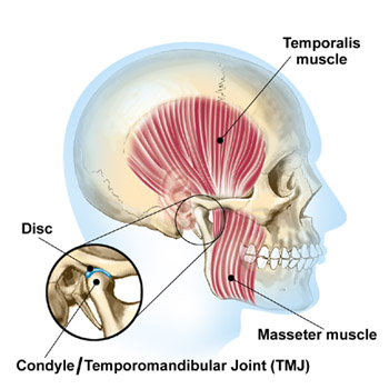 Jaw pain muscles--West Hollywood Chiropractic