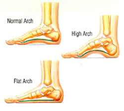 What Are The Causes Of The Pes Planus Deformity Lauri