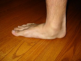Beverly Hills chiropractic flat feet