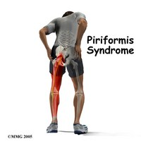 West Hollywood Chiropractor--piriformis syndrome