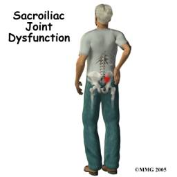 sacroiliac joint dysfunction, west hollywood chiropractor