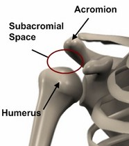 Los Angeles, West Hollywood, Beverly Hills Chiropractor Dr. Nick Campos Subacromial Space