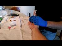 Trigger Finger treatment Los Angeles