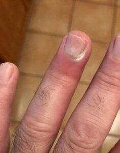 infected finger - paronychia